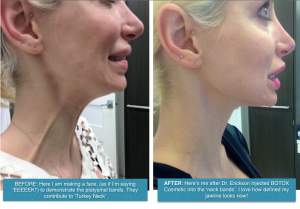 Dr Quenby Erickson injected BOTOX Cosmetic into the platysmal bands to recontour the neck and jawline without surgery.